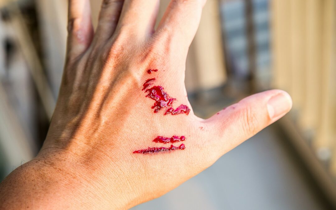 Why You Need a Personal Injury Lawyer for a Dog Bite